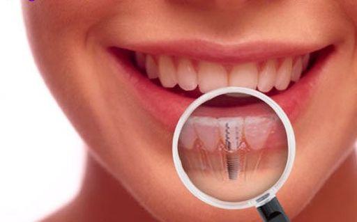 Implanturi dentare care au revolutionat lumea stomatologiei!