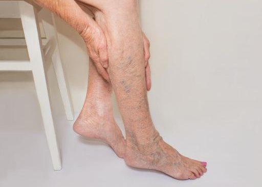 Varicele: Cauze, Simptome, Factori de risc, Complicatii si Preventie