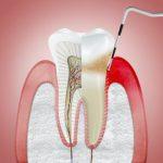 Cine poate fi afectat de gingivită și cum apare?